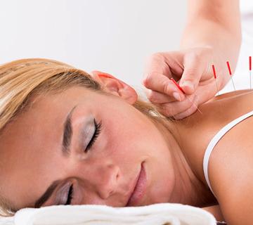 Acupuncture-Treatment